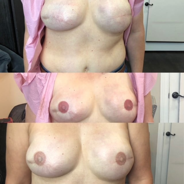 Permanent Makeup Houston areola pre post healed